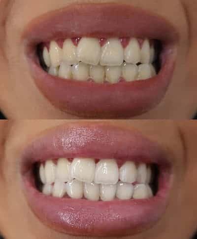 พนักงานยอดเยี่ยมมาก! และผลลัพธ์ที่ได้ก็พอใจมาก :) แนะนำสำหรับทุกคนที่ต้องการฟันที่ขาวสว่างขึ้น