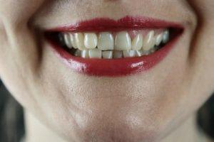 รูป 1 เมื่อคุณมีปัญหาฟันเหลืองทำไงให้ขาว The Smile Bar - Bangkok มีหลากหลายวิธีที่จะช่วยให้ได้รอยยิ้มที่มั่นใจกลับมา