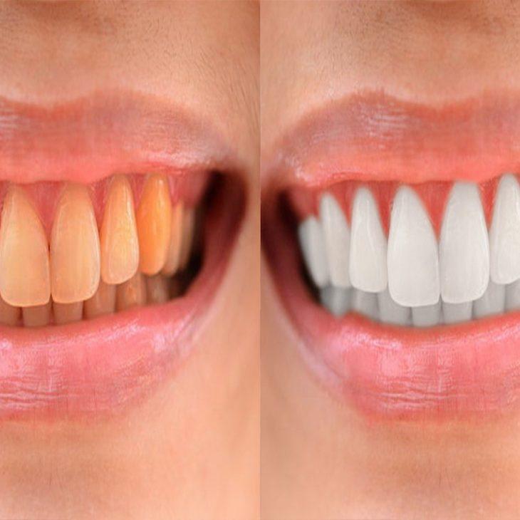 วิธีช่วยให้ฟันขาวได้จริงไม่ปลอมฟันขาวPhotoshop