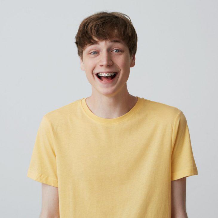 จัดฟันฟันเหลืองสามารถฟอกสีให้ขาวได้หรือไม่?