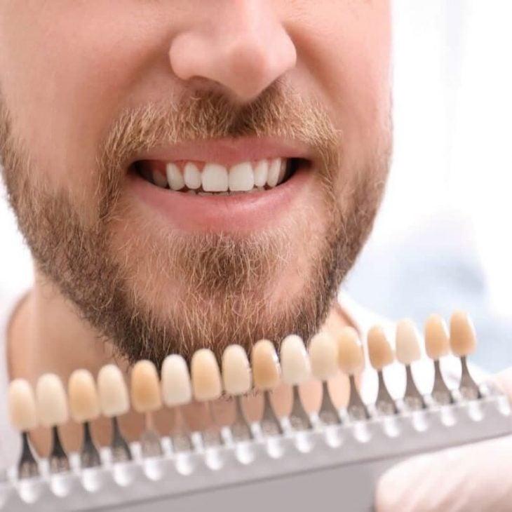 ค้นหาคำตอบสำหรับการฟอกสีฟันแบบไหนดีที่สุด